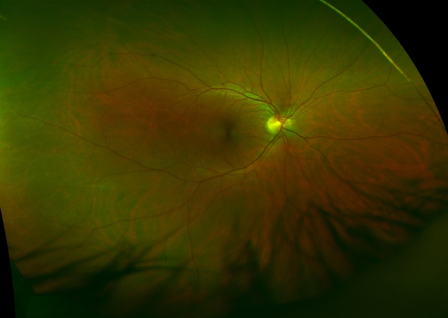 optomac retinal exam beauty is in the eye of the beholder cardio elliptical interval training